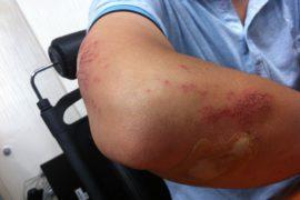 injury-199025_640