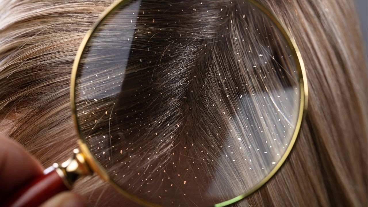 zbliżenie na łupież na włosach