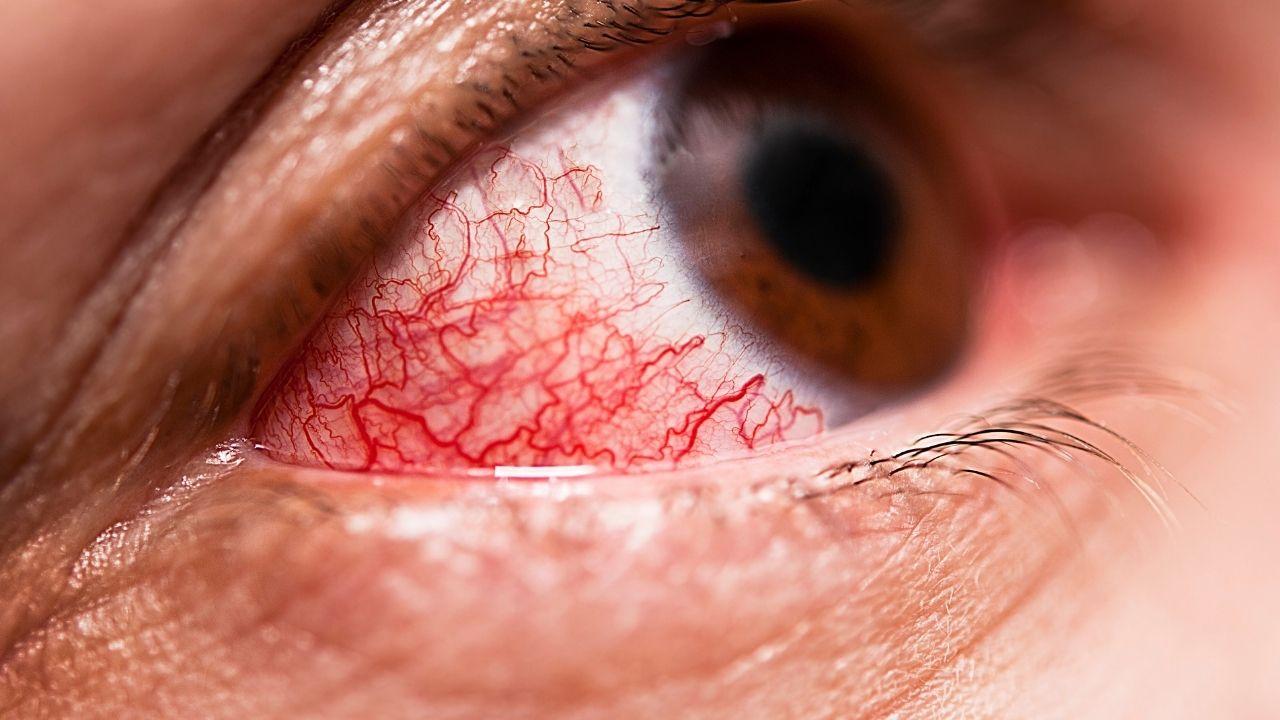zbliżenie na zaczerwienione oko